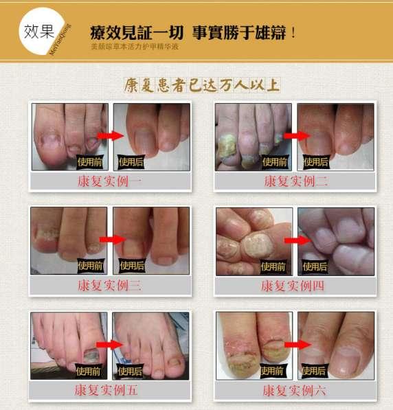 средство от грибка ногтей в Липецке фото 7